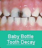bottle_decay2