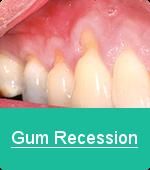 gum_recession2