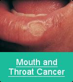 mouththroatcancer2