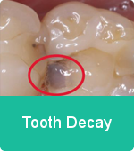 toothdecay2